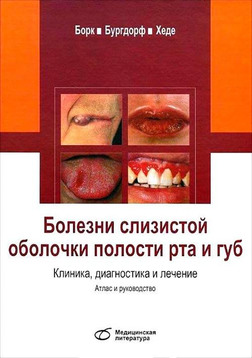 Болезни слизистой оболочки полости рта и губ. Клиника, диагностика и лечение. Атлас