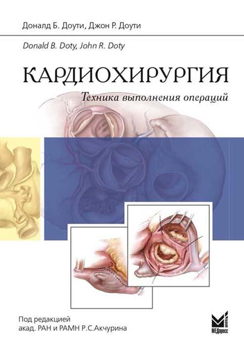 Кардиохирургия. Техника выполнения операций