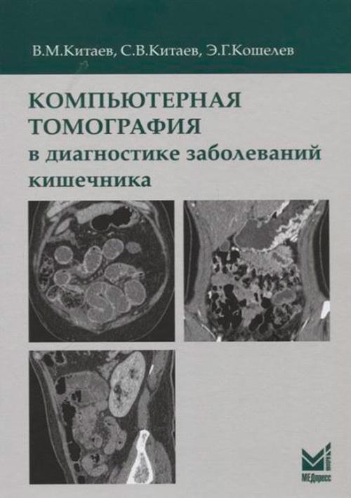 Компьютерная томография в диагностике заболеваний кишечника