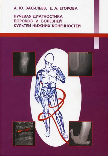 Лучевая диагностика пороков и болезней культей нижних конечностей