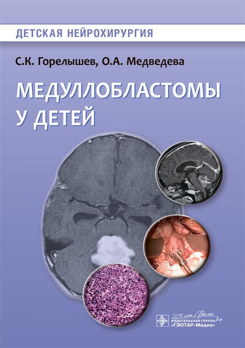 Медуллобластомы у детей. Детская нейрохирургия