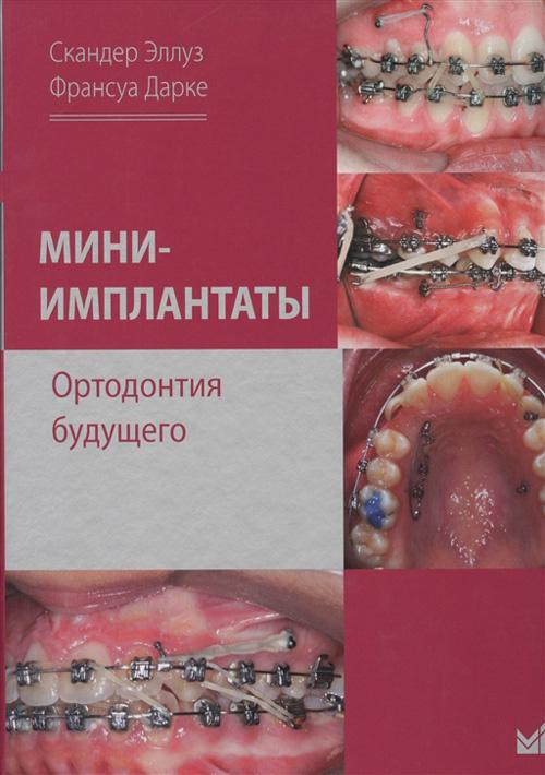 Мини-имплантаты. Ортодонтия будущего
