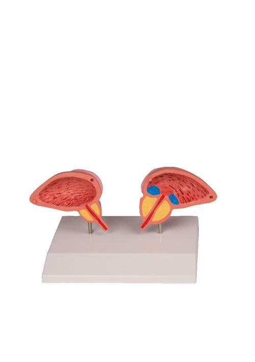 Модель предстательной железы, 2 части