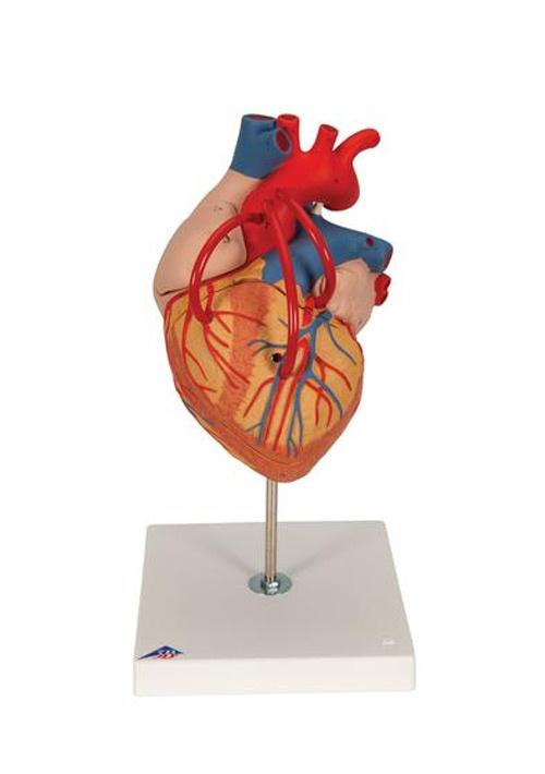 Модель сердца с анастомозами. Увеличение в 2 раза. 4 части