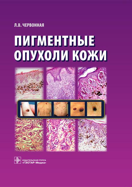 Пигментные опухоли кожи