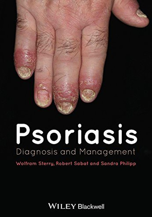 Psoriasis. Diagnosis and Management