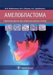Амелобластома: современная диагностика, клиническая картина и лечение