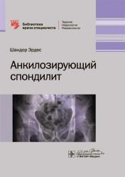 Анкилозирующий спондилит. Библиотека врача-специалиста