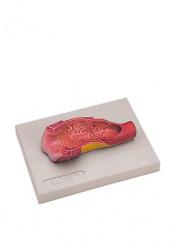 Анус человека. Модель в натулальную величину