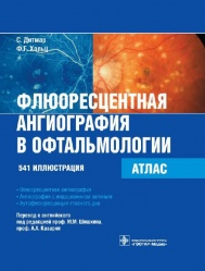 Флюоресцентная ангиография в офтальмологии