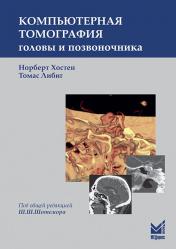 Компьютерная томография головы и позвоночника