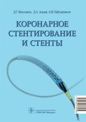 Коронарное стентирование и стенты