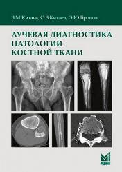 Лучевая диагностика патологии костной ткани