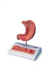 Модель желудка с язвами