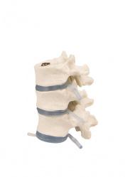 Модель трех грудных позвонков