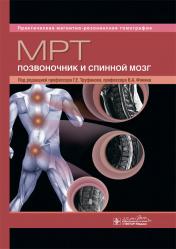 МРТ. Позвоночник и спинной мозг. Руководство. Практическая магнитно-резонансная томография