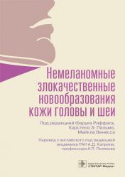 Немеланомные злокачественные новообразования кожи головы и шеи