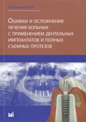 Ошибки и осложнения лечения больных с применением дентальных имплантов и полных съемных протезов