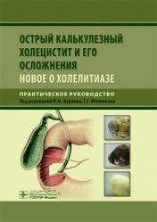 Острый калькулезный холецистит и его осложнения. Новое о холелитиазе. Руководство