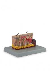 Патологическая модель обожженной кожи. Увеличение в 3 раза