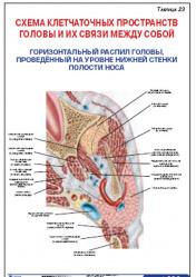 """Плакат """"Схема клетчаточных пространств головы и их связи между собой"""" (горизонтальный распил головы) pgk023"""