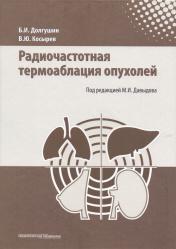 Радиочастотная термоаблация опухолей печени