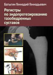 Регистры по эндопротезированию тазобедренных суставов