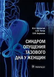 Синдром опущения тазового дна у женщин