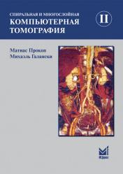 Спиральная и многослойная компьютерная томография. В 2-х томах. Том 2