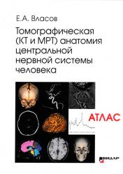 Томографическая (КТ и МРТ) анатомия центральной нервной системы человека