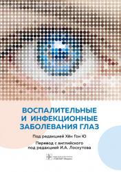 Воспалительные и инфекционные заболевания глаз