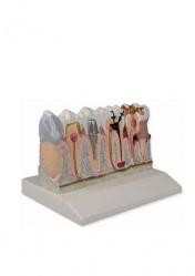 Зубная модель