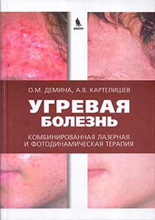 Угревая болезнь. Комбинированная лазерная и фотодинамическая терапия. Руководство